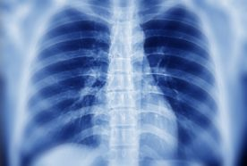A close up of a chest x-ray